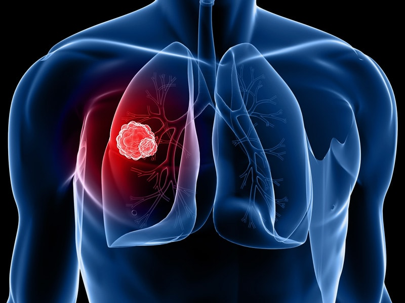 lung cance1 American lung association offers a wide variety of lung cancer resources and information we have everything you need from learning about types of lung cancer, symptoms and risk factors to.
