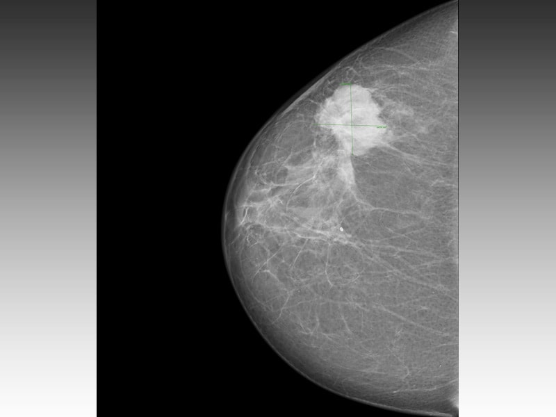 Breast Cancer Found by Mammography: Older Women May Benefit