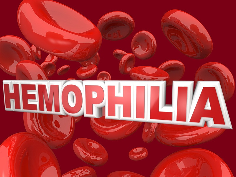 FDA Approves Idelvion for Hemophilia B