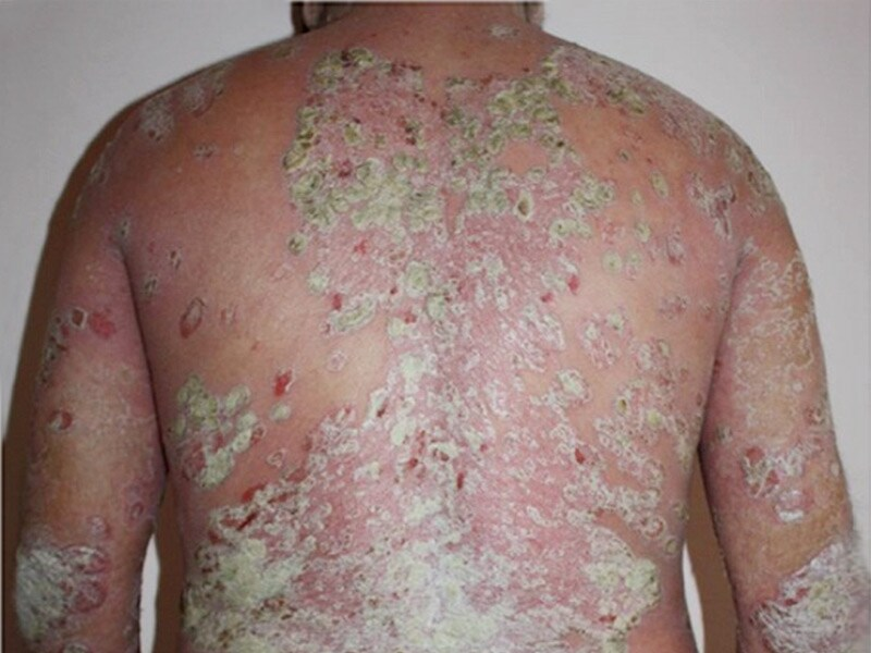 For severe Psoriasis 1