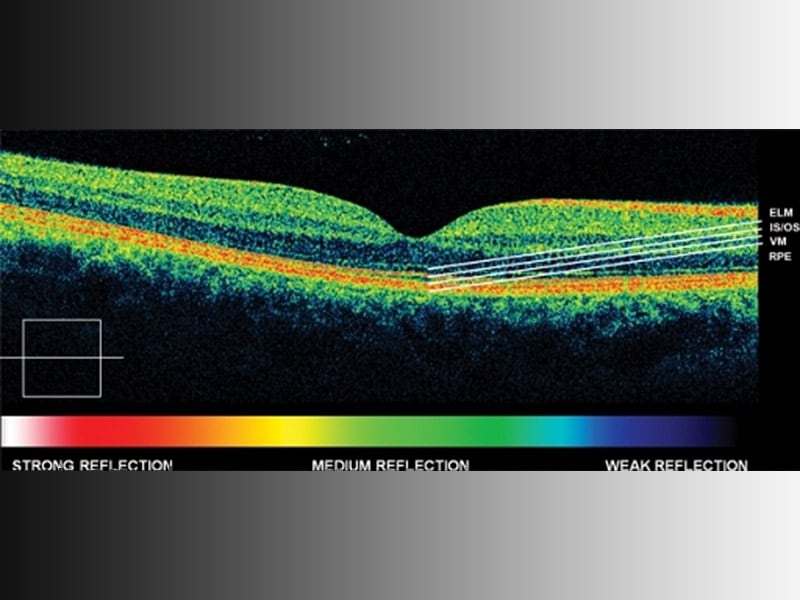 spectral domain optical coherence tomography thesis Study of peripapillary retinal nerve fiber layer and foveal thickness in  hyperopia using spectral domain optical coherence tomography thesis  january.