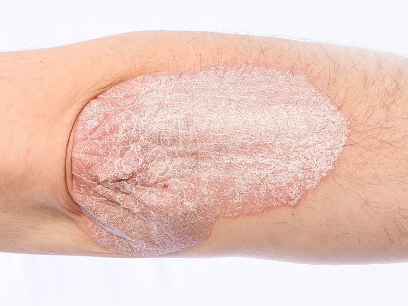 Antihypertensive medications, especially   -blockers, have been linked to psoriasis 3