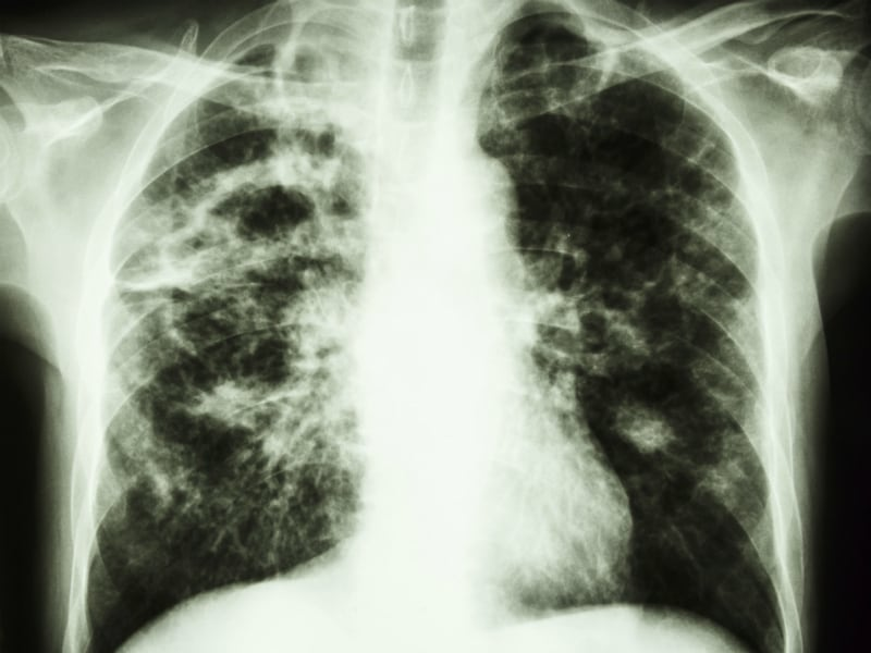 disease in the news tuberculosis Get a detailed overview of tuberculosis including symptoms, causes, treatments and more  active tb disease drug-resistant tuberculosis  us news's featured content providers were not .
