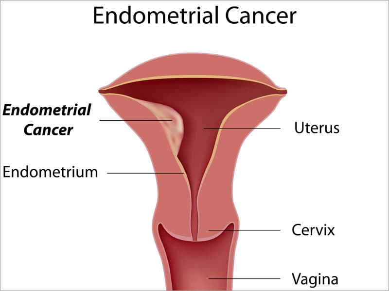 Endometrial and breast cancers