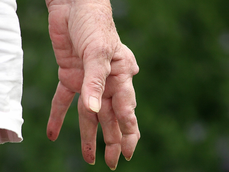 how to get strenght with rheumatoid arthritis
