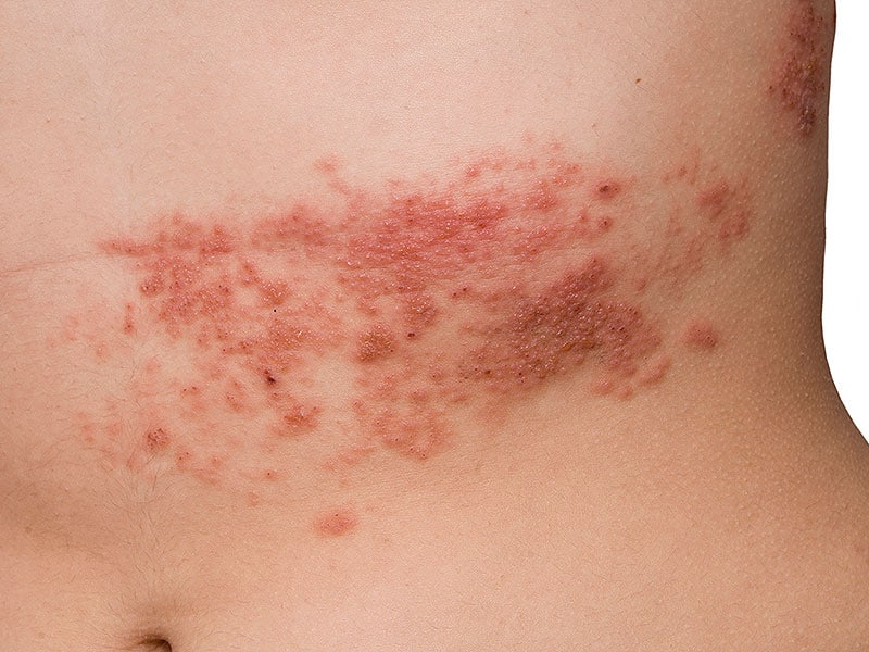 Shingles In Younger Than 50 Years Old 1