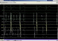 An example of rapid atrial tachycardia mimicking a