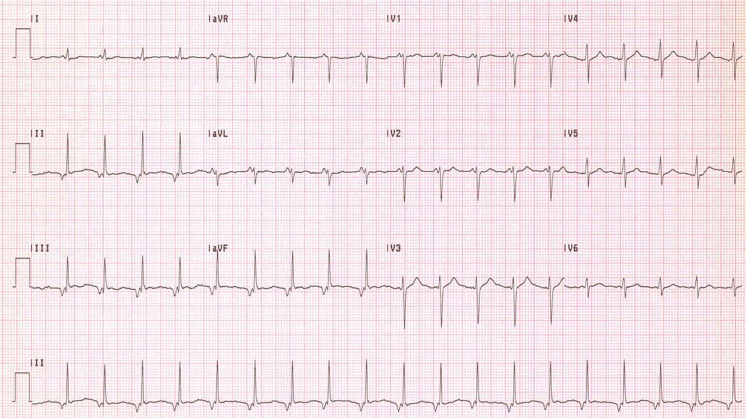 Accelerated junctional rhythm is present in this patient  Note the    Accelerated Junctional Rhythm