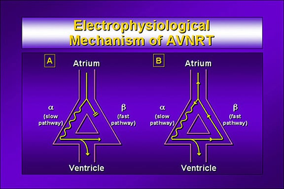 Electrophysiological mechanism of avnrt