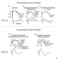 Schematics show the 3 types of action potentials i