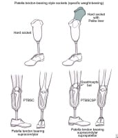 bk prothesis Below knee amputation (bk) bk – below knee prosthesis (bk) below knee amputation is usually done for one of the following reasons.