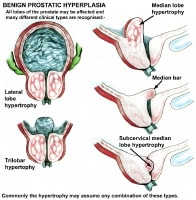 Middle Lobe Prostate http://emedicine.medscape.com/article/449781-overview