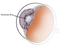 Illustration of intraocular lens placement.