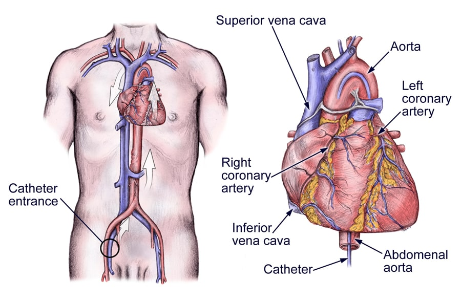 The heart catheterization.