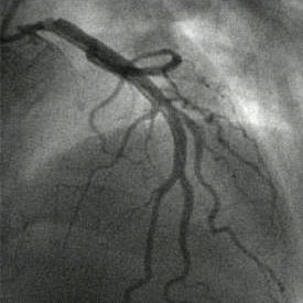 Left main coronary artery dissection from cathete...
