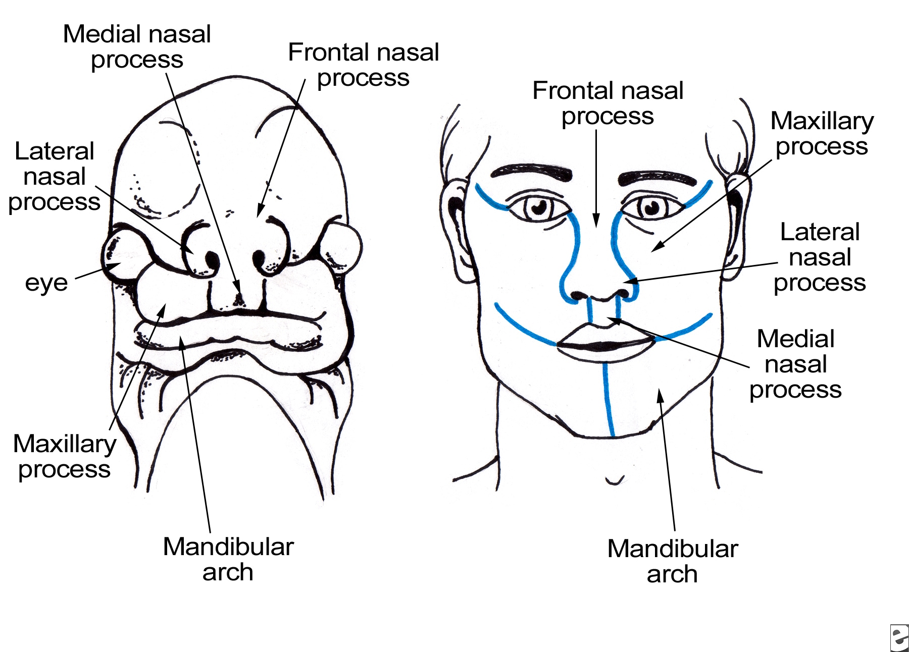 Maxillary process grows medially  and overrides th...