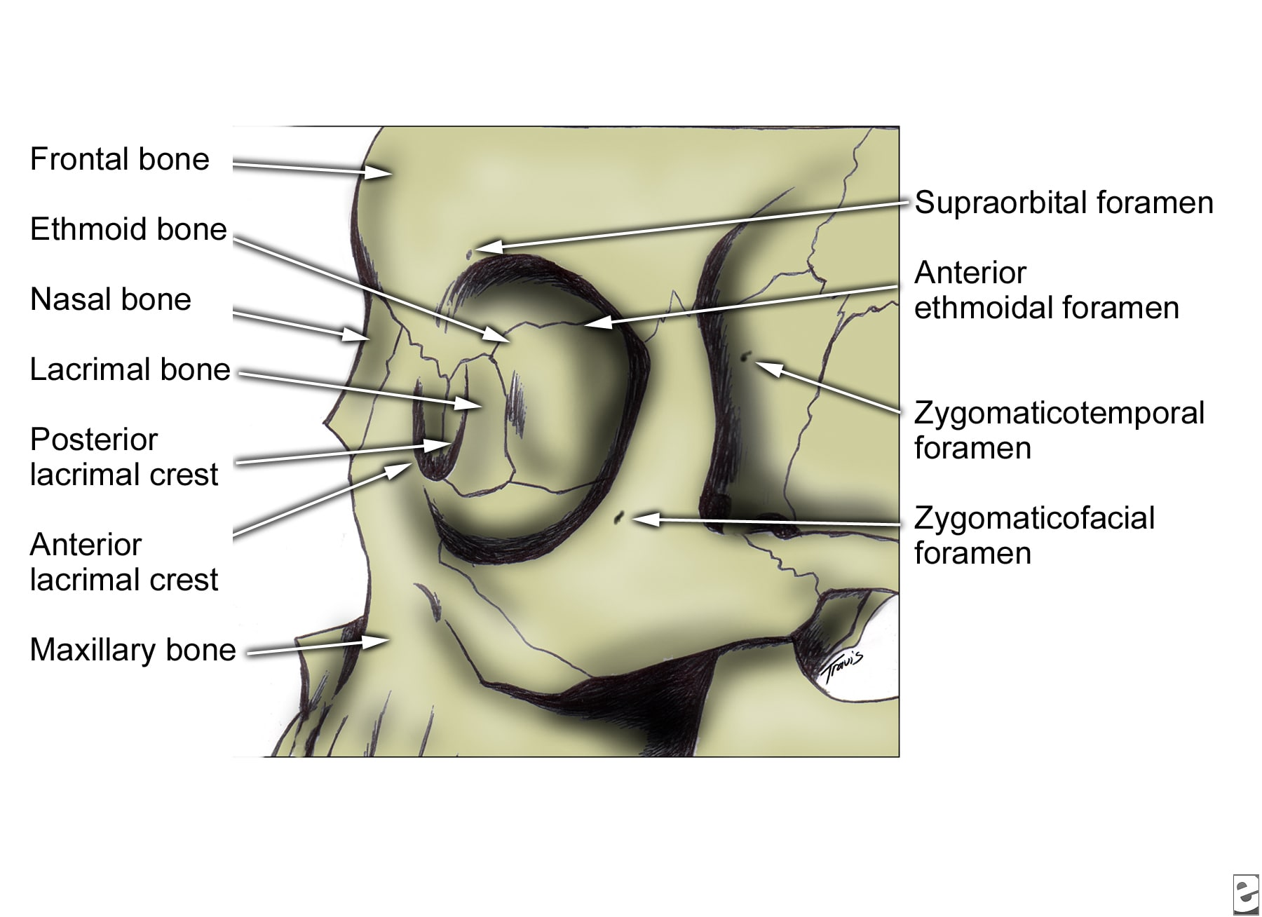 Oral Maxillo Facial Surgery Facial Bone Anatomy