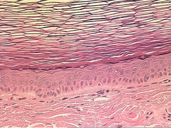 retention cysts or sebaceous cysts. epidermal sebaceous cyst