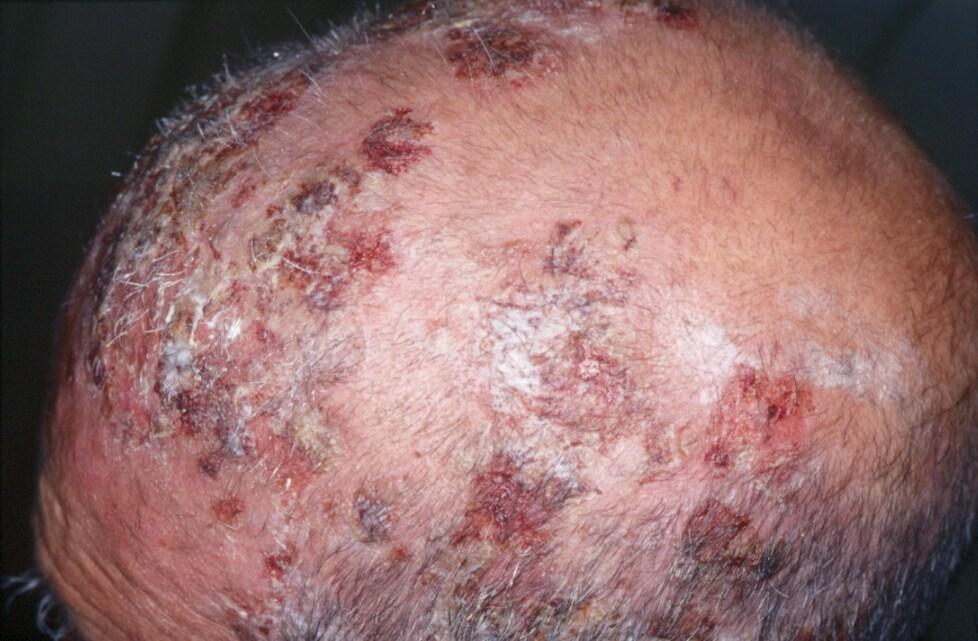 define corticosteroid responsive dermatoses