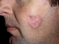 Discoid lupus erythematosus on the face.