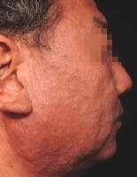 Eosinophilic Pustular FolliculitisEosinophilic Folliculitis Of Infancy