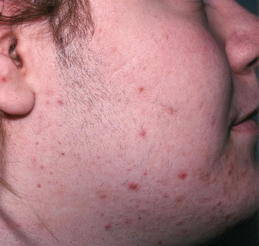 The patient has late-onset congenital adrenal hyp... Hirsutism