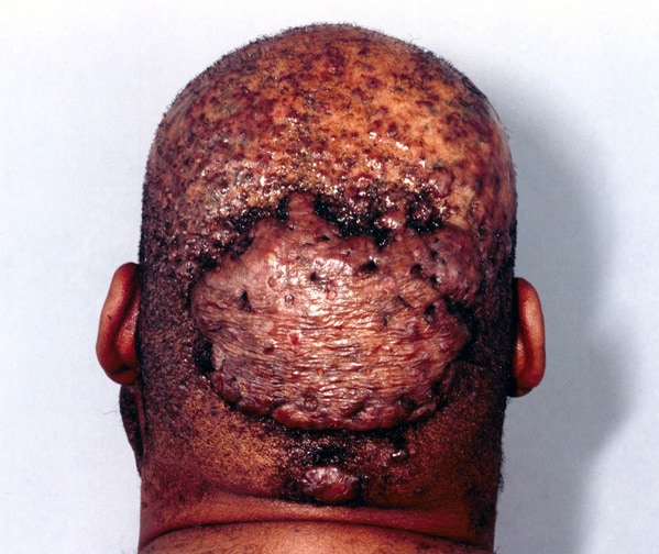 This man also had perifolliculitis of the scalp and acne conglobata (the