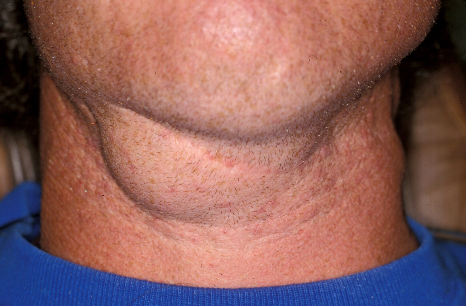 Example of a cervical ranula  with no oral involve...
