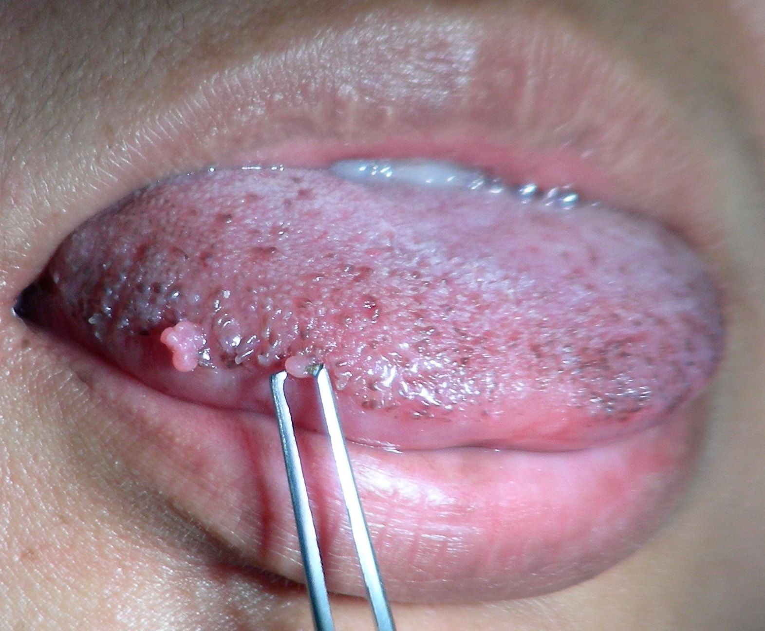 These small papillomas on the lateral tongue of a young woman showed