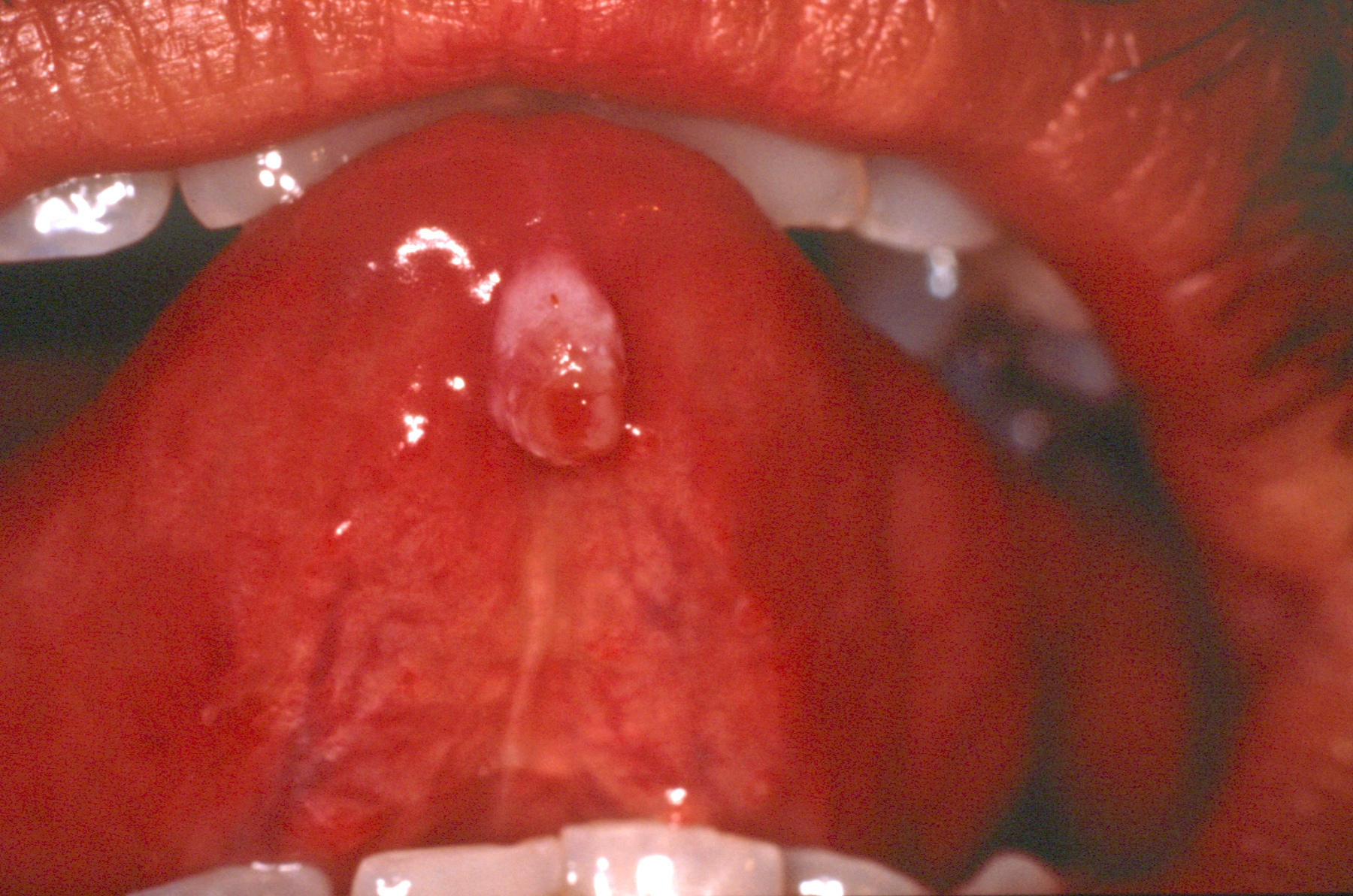 Mucocele on the midline ventral  surface of the to...