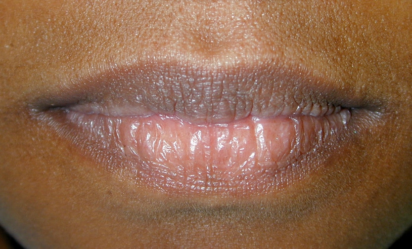 mild herpes on lip
