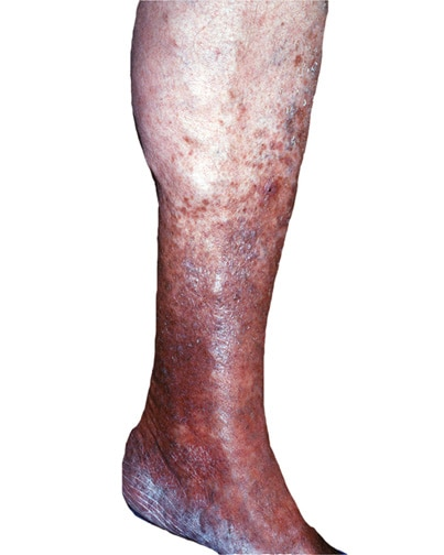 Lower Leg Discoloration