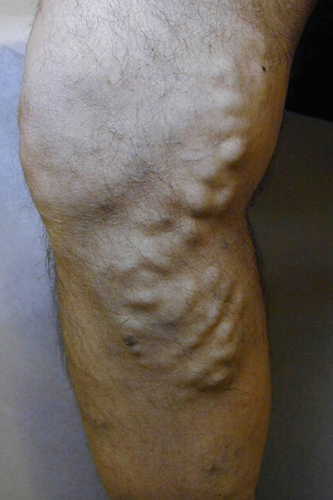 Varicose Veins Treatment-img.medscape.com