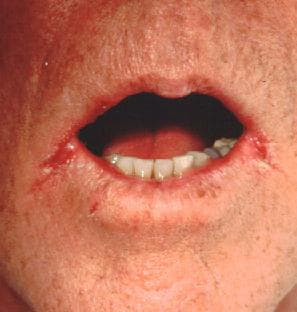 are cold sores contagious gastroenteritis