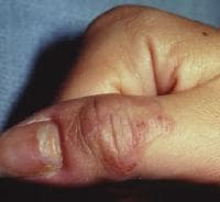Cutaneous larva migrans on the right thumb.