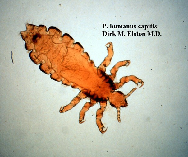 Pediculosis corporis  Wikipedia