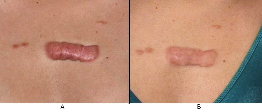 Keloid scar on the anterior chest before (A) and .
