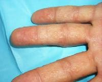 Small tense vesicles on the fingers.