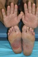 Palms and soles of a patient with a dyshidrosis f...