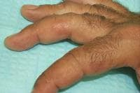 Small discrete vesicles of the lateral fingers.