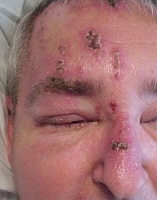 Burning Sensation Under The Eye With Facial Shingles