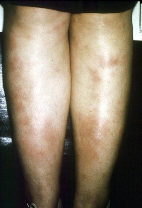 Erythema nodosa. Courtesy of Walter Reed Army Med...