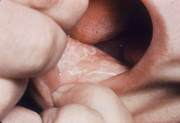 Lichen planus (oral lesions). Courtesy of Walter ...