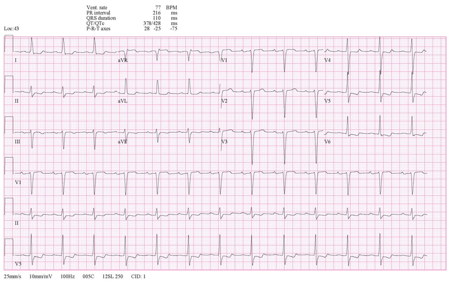 ECG in a patient with first-degree heart block.