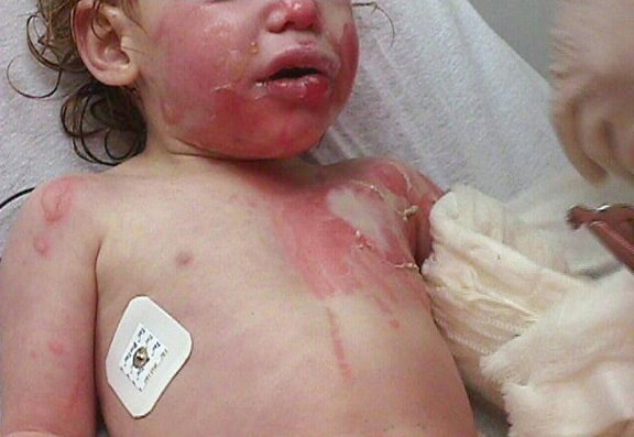 Child with burns from a scald. Hot soup was spill.