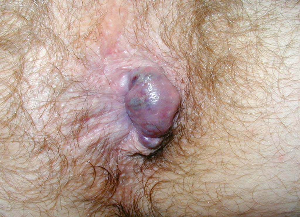 Hemorrhoid Removal