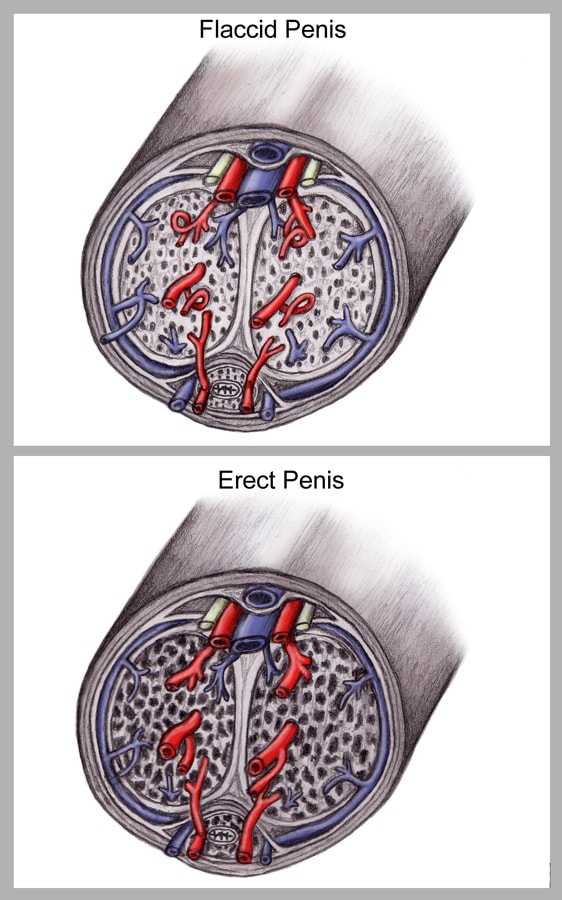 abnormally persistent erection of the penis