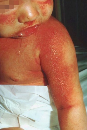 Staphylococcal scalded skin syndrome. Photograph .