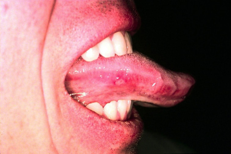 herpes mouth sores pictures. Mouth Herpes Tongue