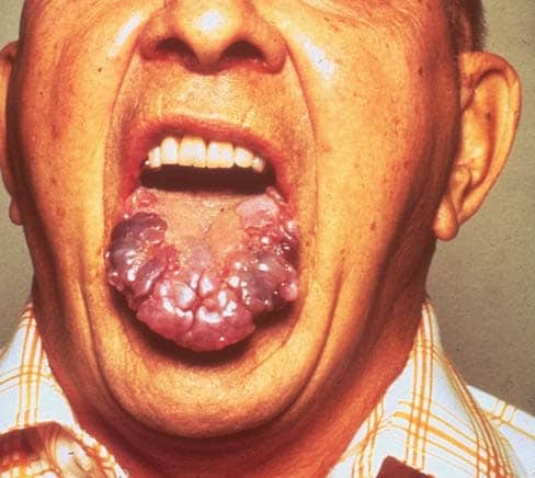 Amyloidosis infiltrating the tongue in multiple myeloma.